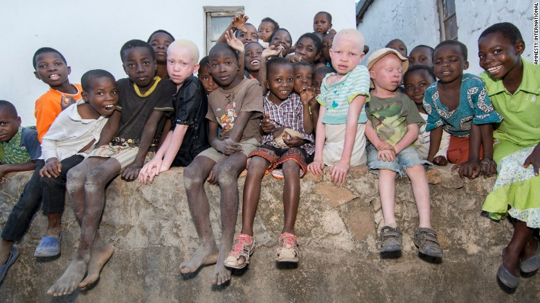 Amnesty: Albinos hunted like animals in Malawi