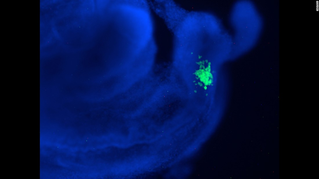 In this human-mouse chimeric embryo, the human stem cells are shown in green and mouse cells are blue. Early in the research, scientists focused on integrating human cells into mouse embryos. However, pigs are now a preferred animal because their organs are roughly the same size as humans'.
