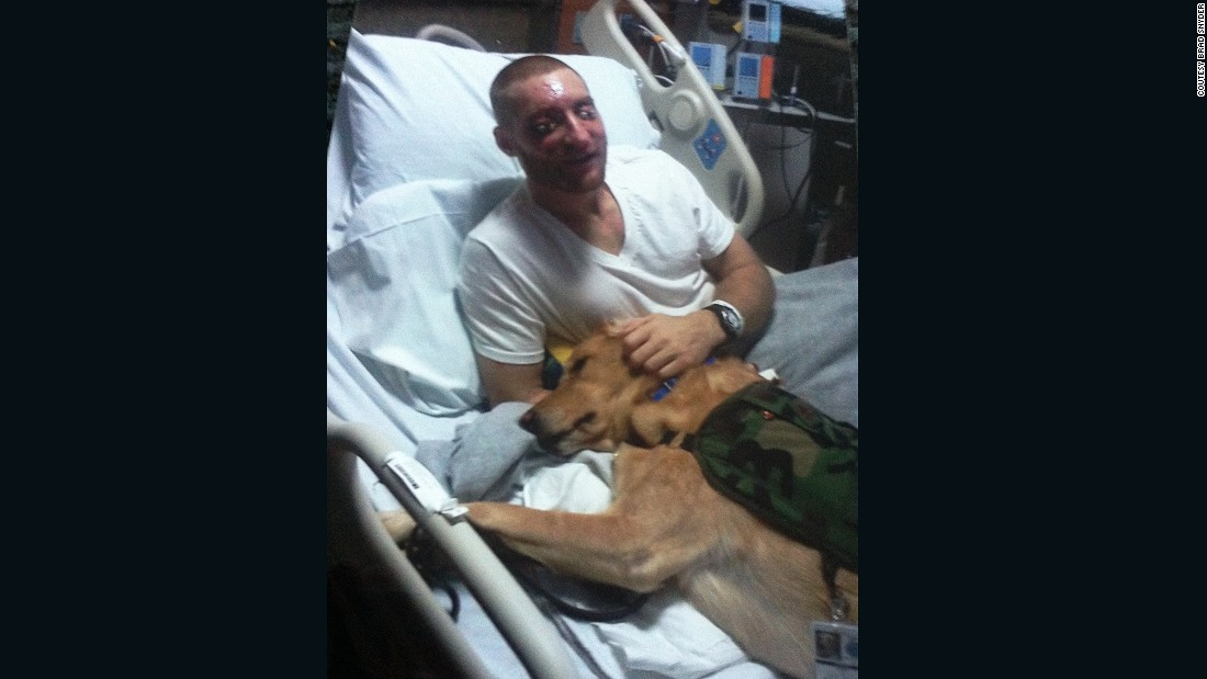 Snyder, then 27, lost his sight and had multiple operations on his face and eyes. From then on, he relies on his service dog, Gizzy, to guide him on the streets of Baltimore, where he now lives.