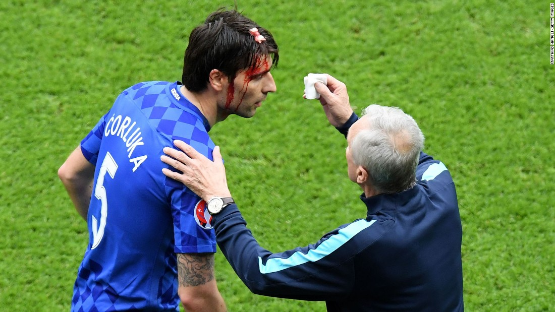 Croatian defender Vedran Corluka receives treatment after receiving a cut to the head.