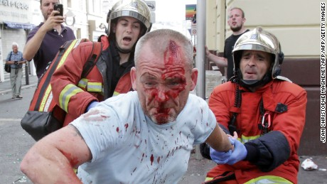 An English fan injured after a street brawl is helped by a rescue squad at Euro 2016.