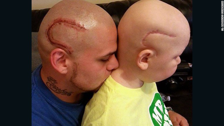 Boy with scar faces second bout with cancer