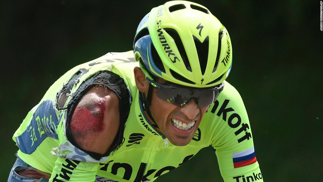 Alberto Contador, injured in a crash during the first stage of the Tour de France, grimaces as he rides to catch up with the pack on Saturday, July 2.