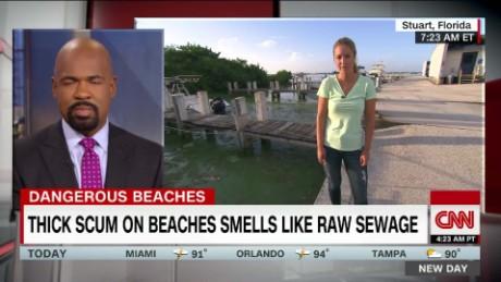 exp Toxic algae bloom covers Florida beaches_00002001