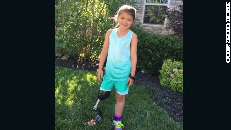 Katie has a special prosthesis for running.