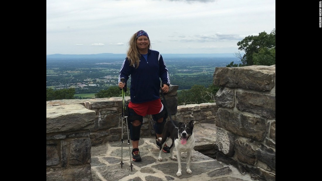 The 2,190-mile long Appalachian Trail is daunting even to those who have no trouble walking, and few who set out manage to travel the entire trail. That hasn't stopped Stacey Kozel.