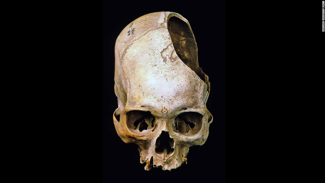 A stone blade scraped through layers and layers of bone to create the gaping hole in this skull. The operation was among the first of its kind ever performed in the Americas, about 2,400 years ago. Through the opening, a prehistoric Peruvian surgeon could clean a head would or examine the brain for bleeding.