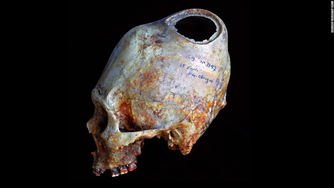 The hole in this Peruvian skull shows the different layers of bone a surgeon scraped through to create the opening: an outer layer, a spongy middle layer and a thin inner layer. Openings this large often removed all evidence of why a surgery was performed.
