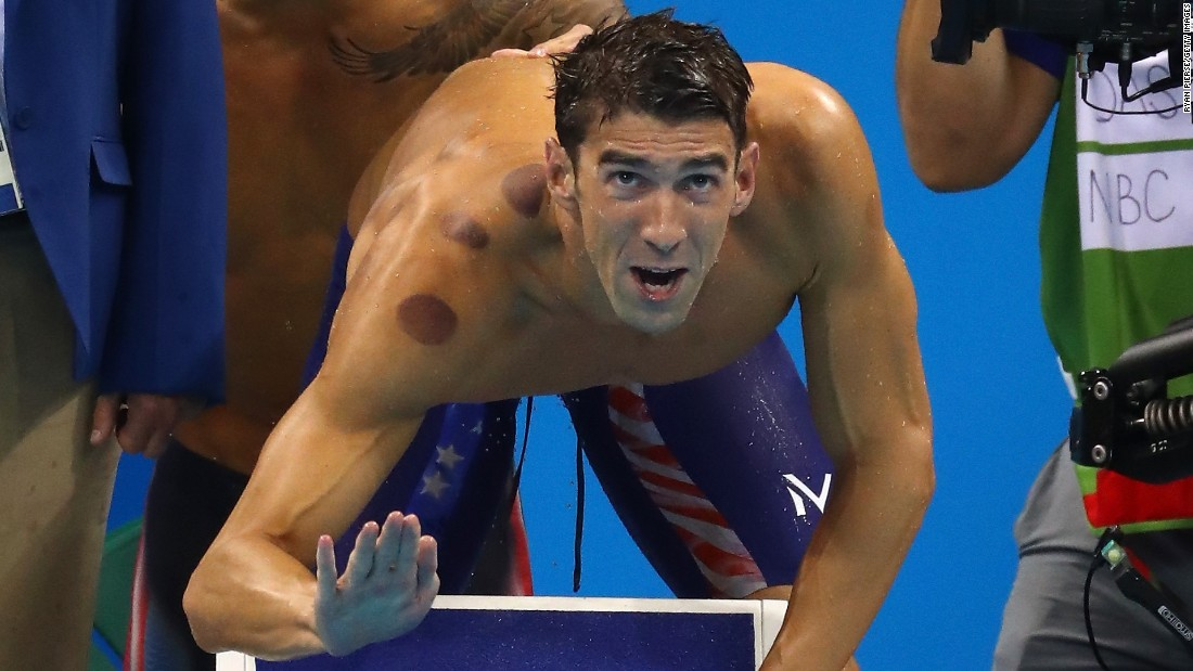 "U.S swimmer Michael Phelps competes in the 4x100-meter freestyle relay on Sunday, August 7. The red marks on his body are <a href=""http://www.cnn.com/2016/08/08/health/cupping-olympics-red-circles/index.html"" target=""_blank"">the result of cupping</a> -- an ancient therapy that has mostly been used in Middle Eastern and Asian countries, especially China."