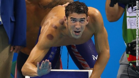 So, does Michael Phelps believe in flossing?