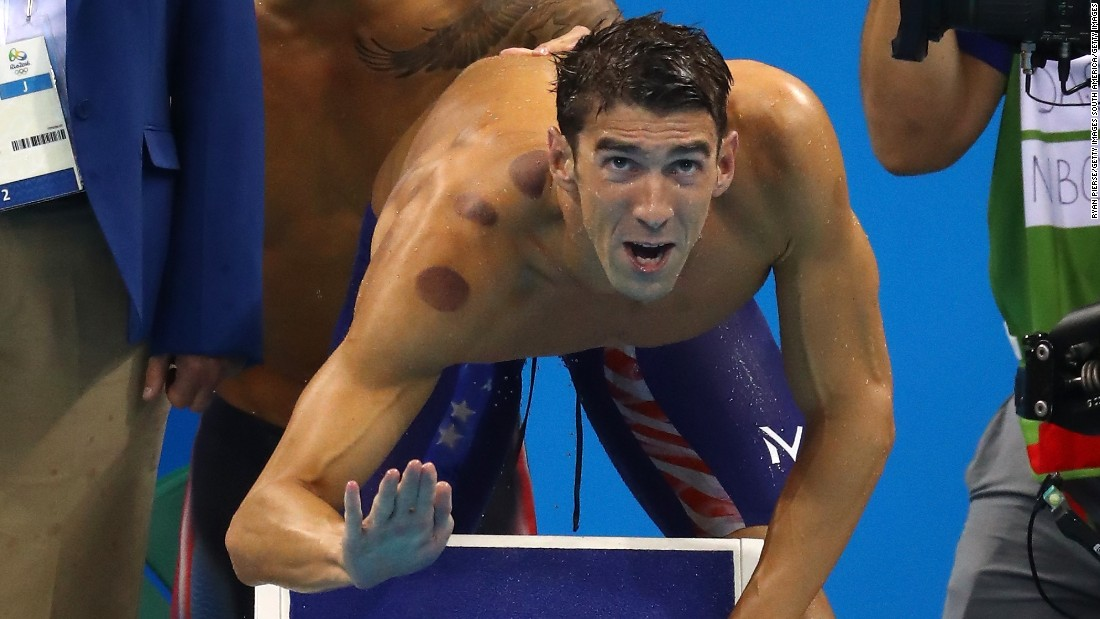 Image result for michael phelps cupping