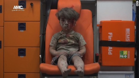 This child is the cost of war in Syria
