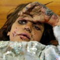 07 children of conflict Fermina Bibi Kandahar
