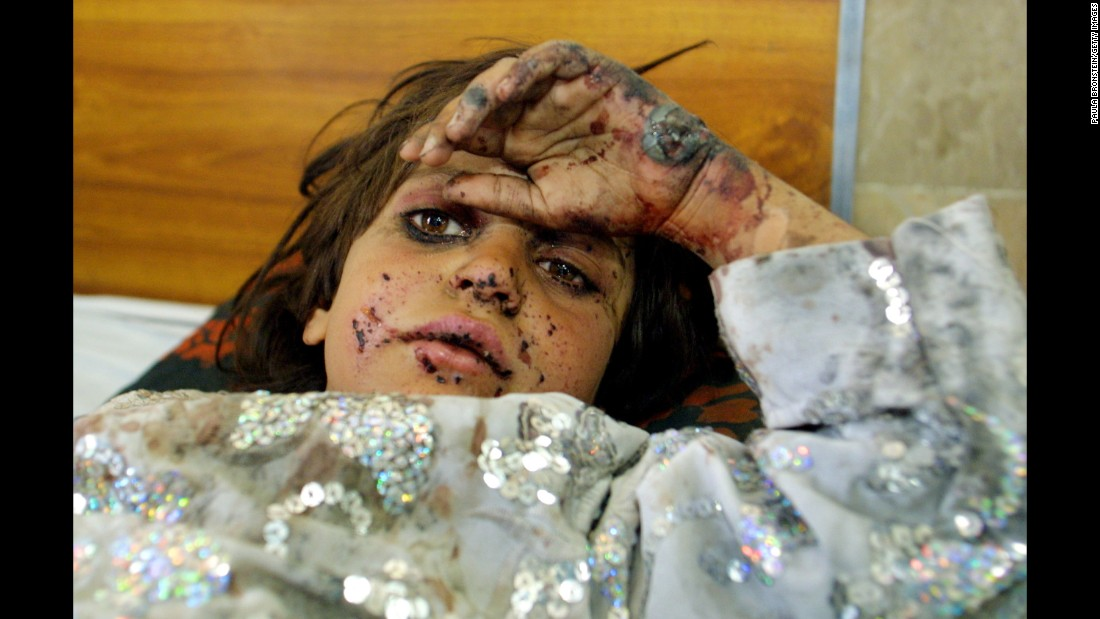 <strong>2001: Quetta, Pakistan </strong>-- Seven-year-old Fermina Bibi, from Kandahar, Afghanistan, lies wounded in a hospital bed. She and her brother were injured when their home in Kandahar was bombed. They were transported to Pakistan for treatment.