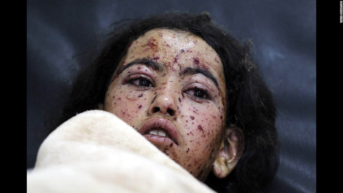 "A child lies on a hospital bed after she was injured in an airstrike in Sanaa, Yemen, on Monday, August 29. At least 10,000 people have been killed in <a href=""http://www.cnn.com/2015/04/23/middleeast/yemen-conflict-explainer-photos/"" target=""_blank"">Yemen's 18-month-old civil war,</a> according to Jamie McGoldrick, humanitarian coordinator for the United Nations."