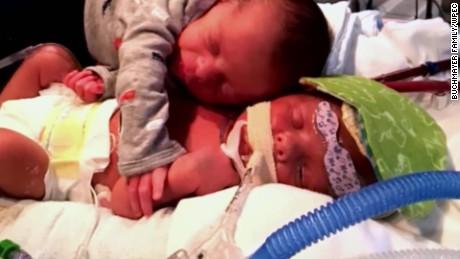 twins hugging viral photo pkg_00002125