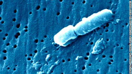 This scanning electron micrograph, SEM, revealed some of the ultra structural morphologic features of a Klebsiella pneumoniae bacterium. K. pneumoniae is a non-motile, Gram-negative rod, and a facultative anaerobe, which means that it is able to adapt to