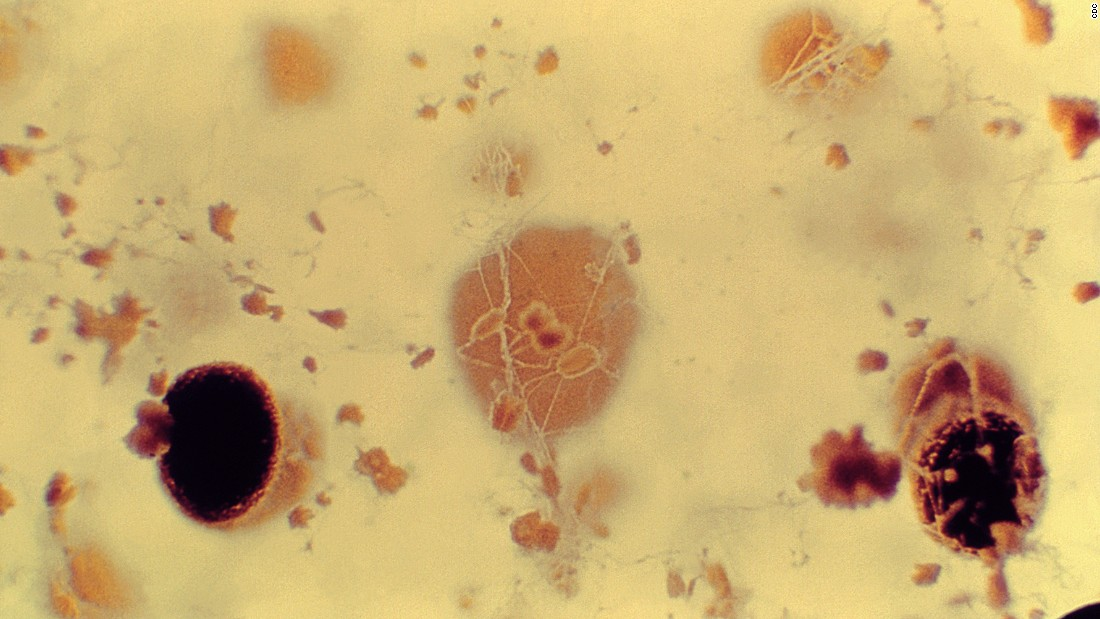 "One such fungus is <a href=""https://www.cdc.gov/fungal/diseases/aspergillosis/"" target=""_blank""><em>Aspergillus<em></a></em> -- </em>a common mold found both indoors and outdoors. Most of us breathe in its spores everyday without getting sick, but for those with weakened immune systems it can cause serious lung infections and allergic reactions."