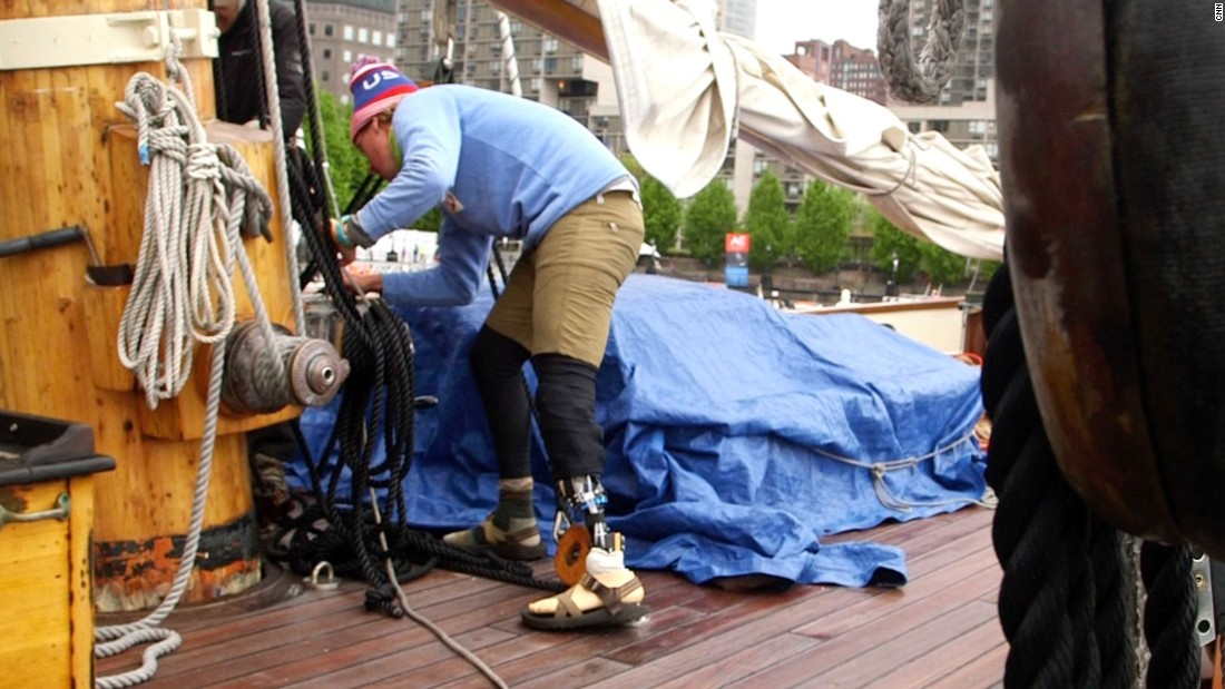 A New Jersey native now teaching sailing in San Francisco, Childers lost half of his left leg after a car crash.