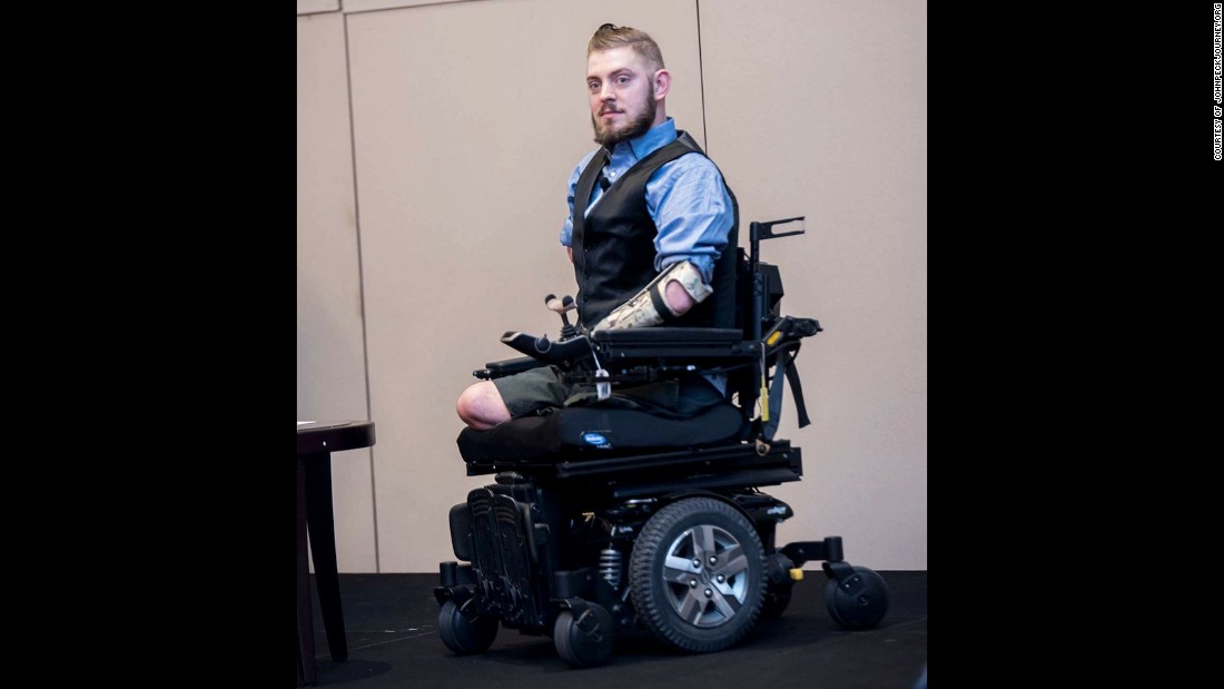 In 2014, Peck learned that he was approved for a bilateral arm transplant.