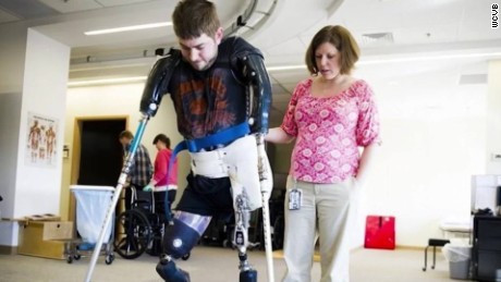 double arm transplant veteran john peck pkg_00014629