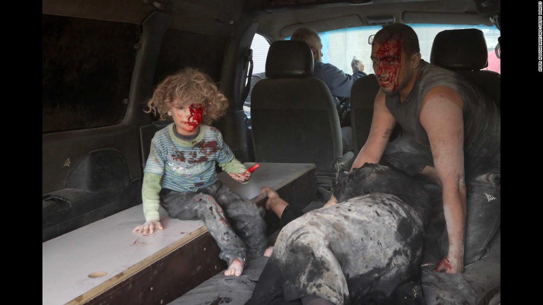 A wounded child sits in the back of a vehicle after a reported airstrike in Kafr Batna, Syria, on Friday, September 30.