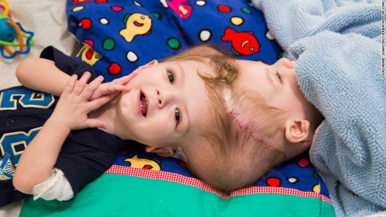 Anias, left, and Jadon McDonald were born conjoined at the head, something only seen in 1 out of every 2.5 million live births. They were separated in a 27-hour surgery at the Children's Hospital at Montefiore Medical Center in New York in October.