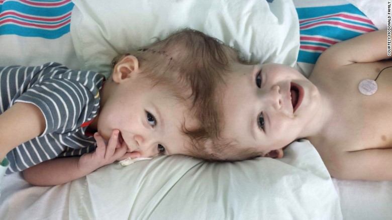 conjoined twins the problems The public and the media have long had an insatiable hunger for heartwarming  medical success stories that involve separating conjoined twins.