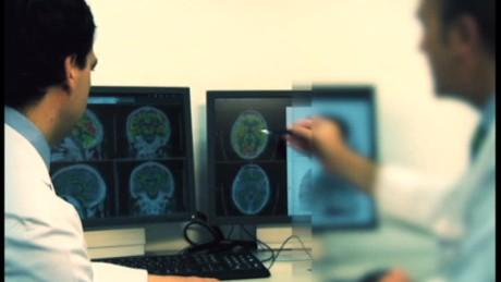 cnnee pkg vive la salud neurologia universidad navarra alzheimer_00000206
