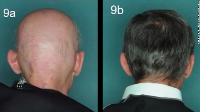 Hairstyles For Alopecia Areata : Drug reverses one baldness type; is male pattern next? cnn