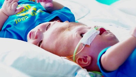 conjoined twins recovery update_00002107.jpg