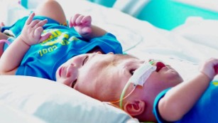 Formerly conjoined twins now in recovery
