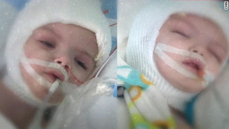conjoined twins recovery update_00013407
