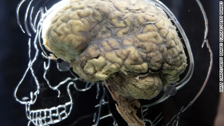 A medical mystery: Cluster of patients struck with rare amnesia
