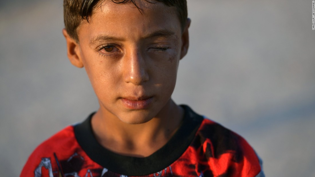 An Iraqi boy who lost an eye in fighting between government forces and ISIS poses for a photograph in the Debaga refugee camp on October 22.