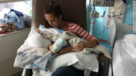 Mom holds separated twin for first time