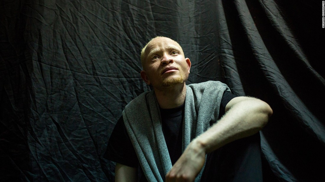 Some African societies see albinism as a curse or a sign of infidelity, which often leads to community ostracism. Pictured here is  contestant Andrew Ngune.