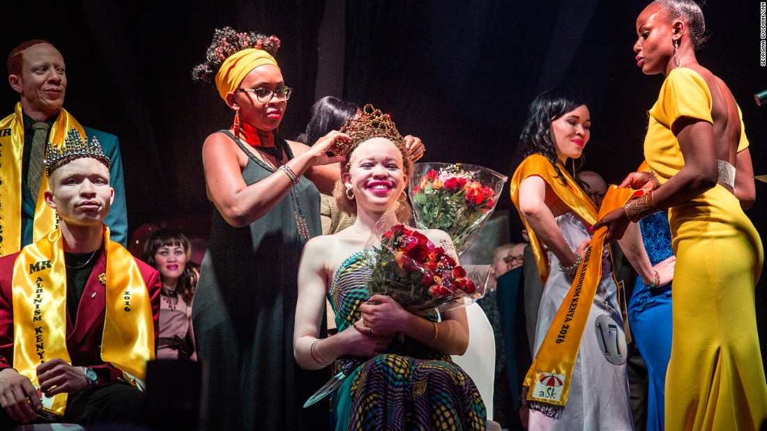 Loise Lihanda was crowned Miss Albinism.