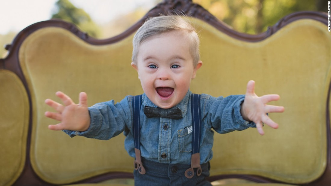 Toddler with Down Syndrome lands modeling gig - CNN Video