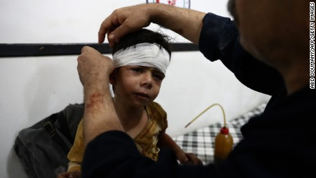 TOPSHOT - An injured Syrian child receives treatment at a makeshift hospital following a reported air stike on the rebel-held town of Douma, east of the capital Damascus, on August 23, 2016.  / AFP / Abd Doumany        (Photo credit should read ABD DOUMANY/AFP/Getty Images)