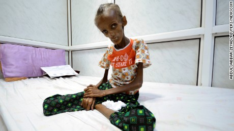 Severely malnourished, Saida Ahmad Baghili, 18, sits on a bed at a hospital in Hodeida, Yemen.