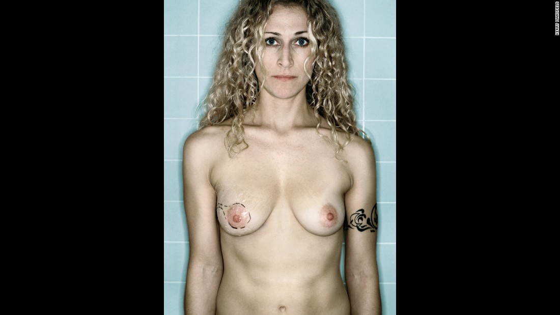 Self Portrait, Pre-Mastectomy, November, 2005