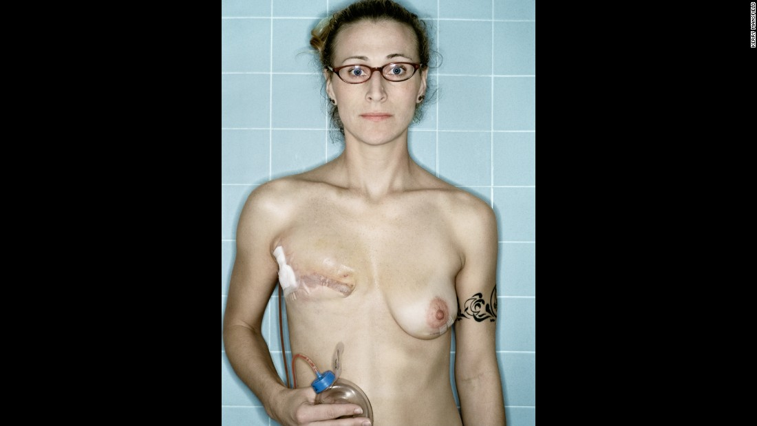 Self Portrait, Post-Mastectomy, December, 2005
