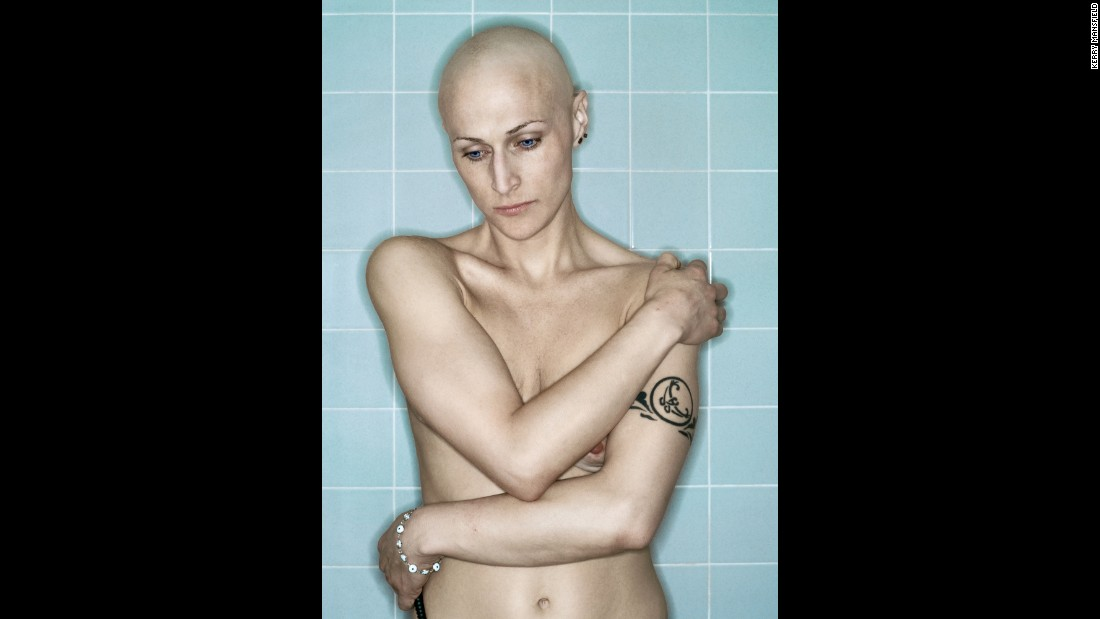 Self Portrait, Chemo 4th Cycle I, March, 2006