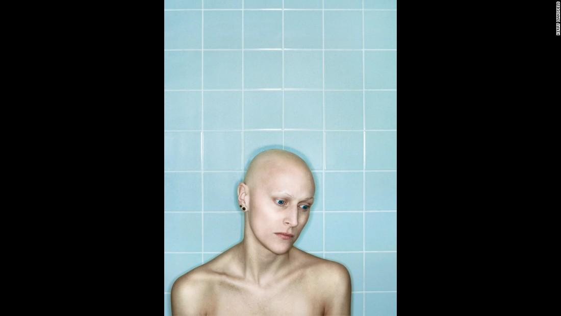 Self Portrait, Chemo 7th Cycle II, April, 2006