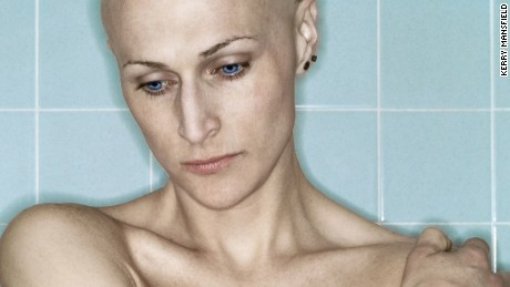 Chronicle of a mastectomy