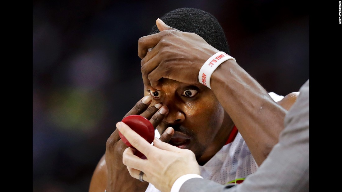 Dwight Howard adjusts a contact lens on the sideline during an NBA basketball game in Atlanta on Saturday, November 12.