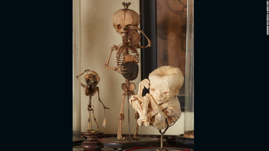 """I am an obsessive collector and dealer ... with a concentration on rare, medical, scientific, and anthropologically related antiquities,"" Cohn says. <br /><br />These 19th-century fetal skeletons, and the calcified fetus seen on the right, are just a small part of his collection."