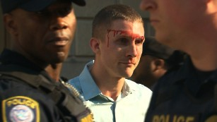 Anti-Fascist Protest in Downtown Austin, White nationalist bloodied during DC protest