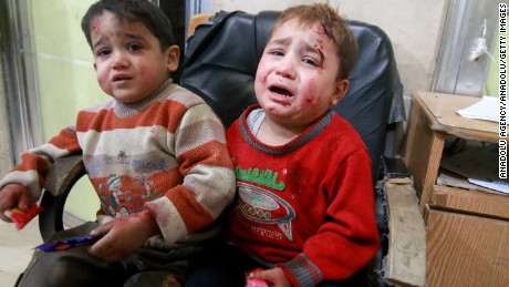 ALEPPO, SYRIA - NOVEMBER 17: (EDITOR'S NOTE: Image contains graphic content.) Wounded kids wait to receive medical treatment at the Sahra hospital after the war crafts belonging to the Assad Regime and Russian forces carried out airstrikes on residential areas at the opposition controlled Salihin neighborhood of  Aleppo, Syria on November 17, 2016. It is reported that at least 94 people killed and 150 others wounded due to airstrikes within last 48 hours.  (Photo by Jawad al Rifai/Anadolu Agency/Getty Images)